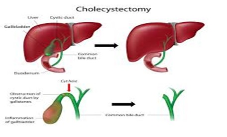 التهاب کیسه صفرا (Cholecystitis)